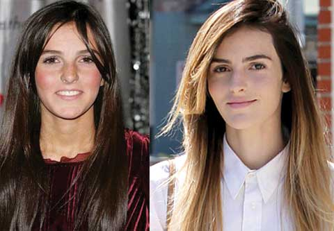 ali lohan plastic surgery before and after photos 2018