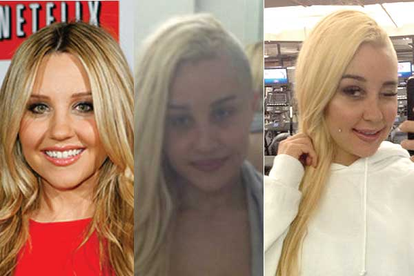 amanda bynes plastic surgery before and after photos 2019