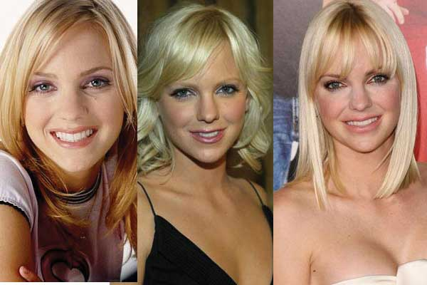 anna faris plastic surgery before and after photos 2018
