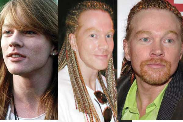 axl rose plastic surgery before and after photos 2018