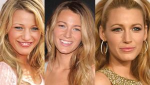blake lively plastic surgery before and after photos