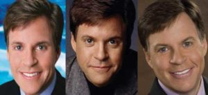 bob costas plastic surgery before and after photos