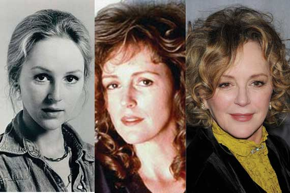 bonnie bedelia plastic surgery before and after photos 2018