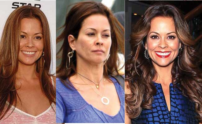 brooke burke plastic surgery before and after photos 2018