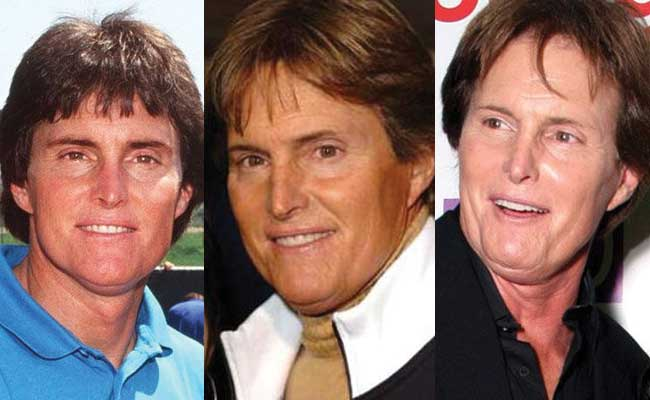 bruce jenner plastic surgery before and after photos 2018