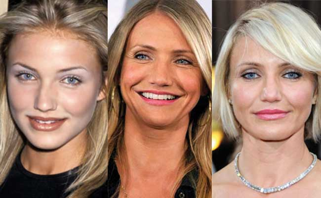 cameron diaz plastic surgery before and after photos 2018