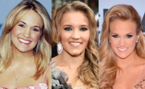 carrie underwood plastic surgery before and after photos