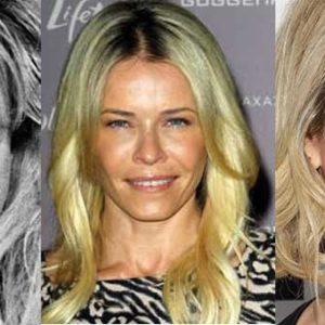 Chelsea Handler Plastic Surgery