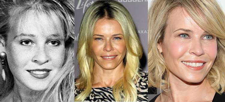 chelsea handler plastic surgery before and after photos 2018