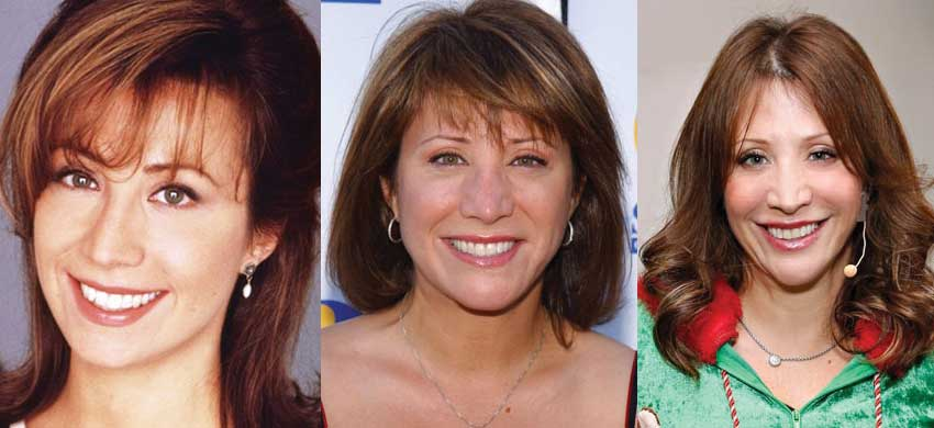 cheri oteri plastic surgery before and after photos 2018