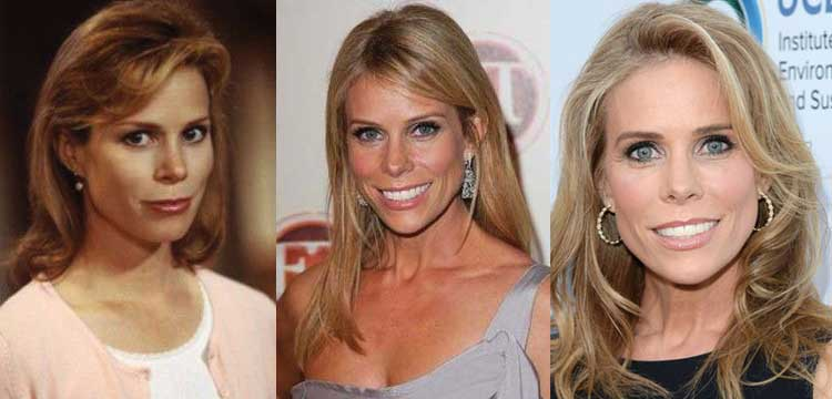 cheryl hines plastic surgery before and after photos 2021