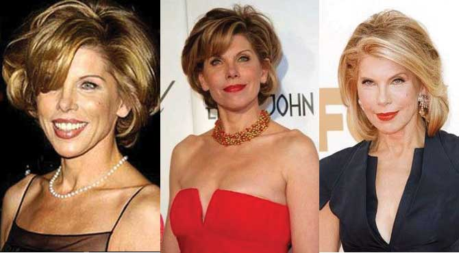 christine baranski plastic surgery before and after photos 2019