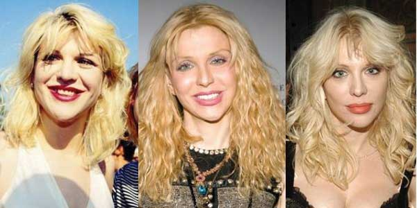 courtney love plastic surgery before and after photos 2021