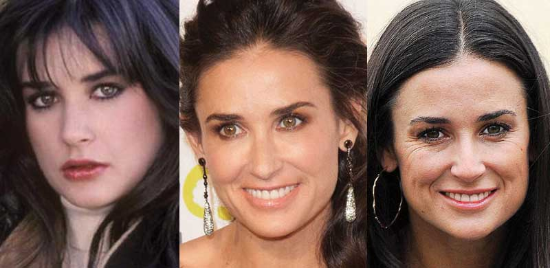 Demi Moore Plastic Surgery Before And After Pictures 2019