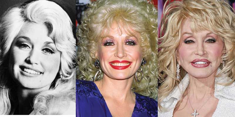 dolly parton plastic surgery before and after photos 2018
