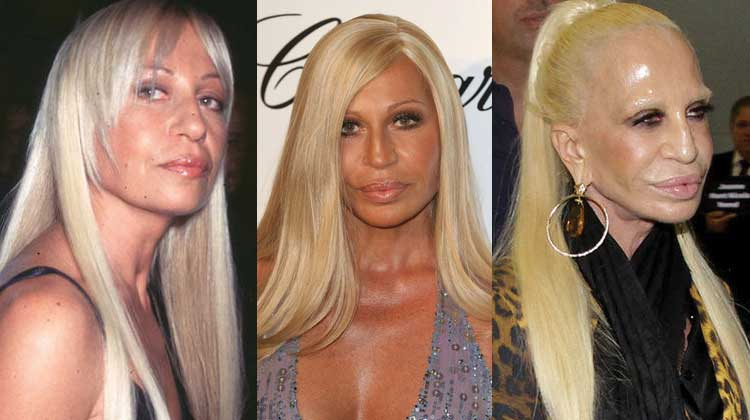 donatella versace plastic surgery before and after photos 2019