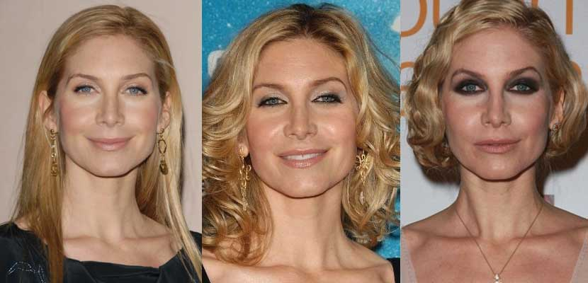 elizabeth mitchell plastic surgery before and after photos 2018