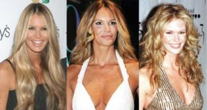 elle macpherson plastic surgery before and after photos