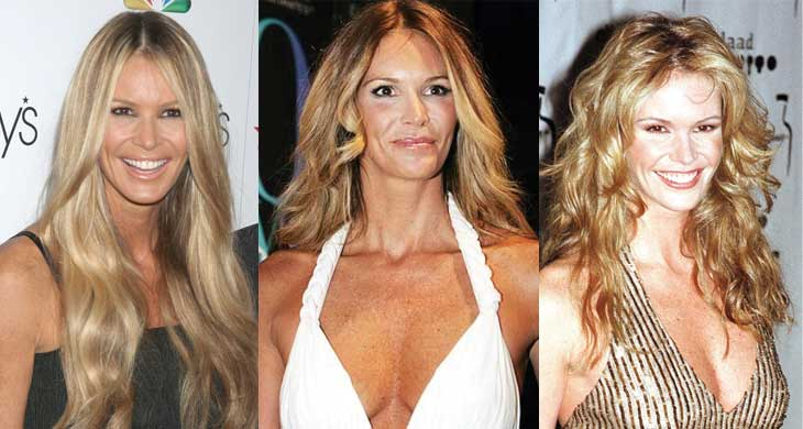 elle mcpherson plastic surgery before and after photos 2020
