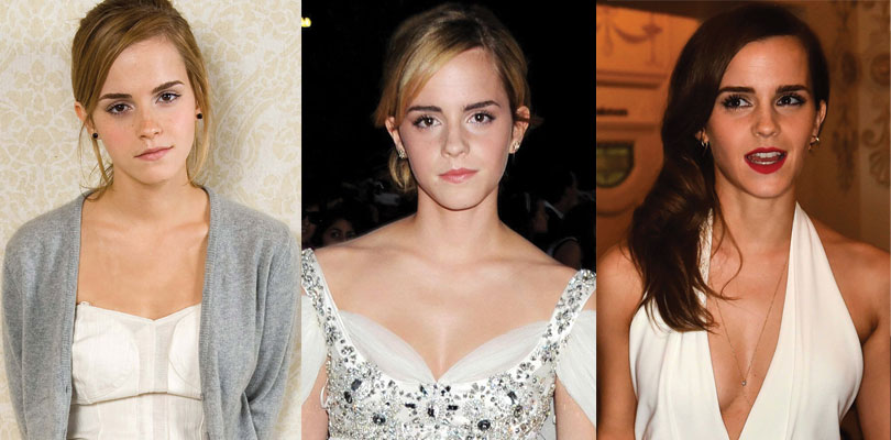 emma watson before and after plastic surgery 2021