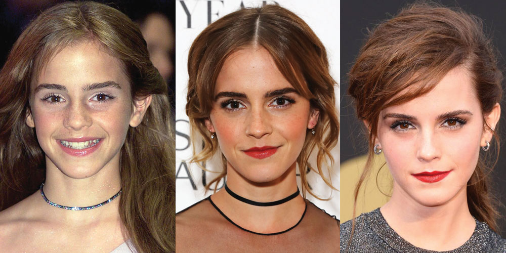 emma watson plastic surgery before and after photos 2021