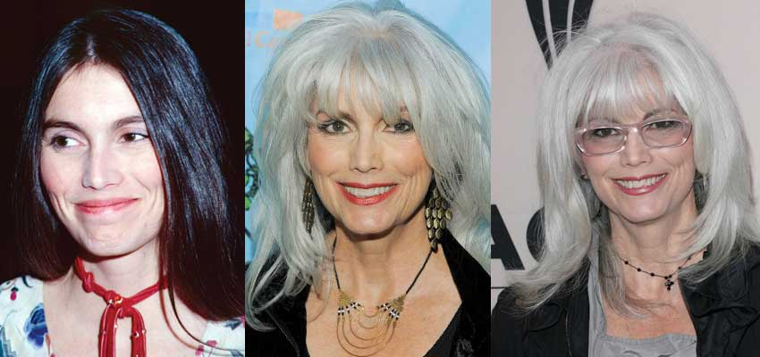 emmylou harris plastic surgery before and after photos 2018