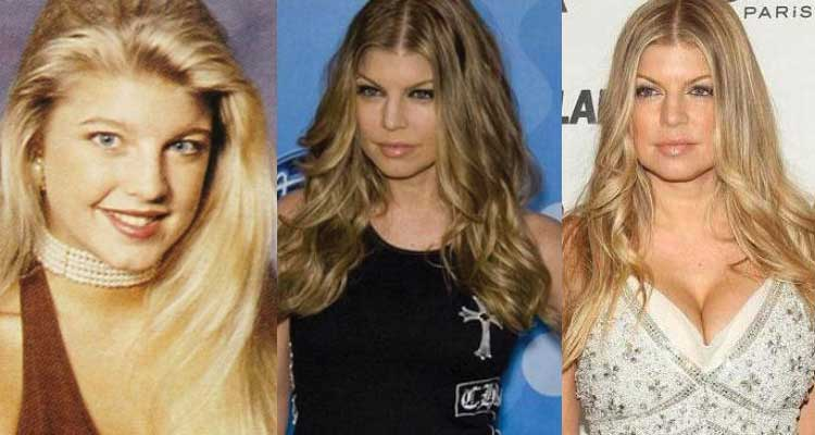 fergie plastic surgery before and after photos 2018