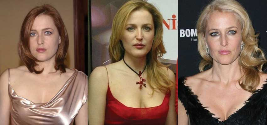 gillian anderson plastic surgery before and after photos 2020