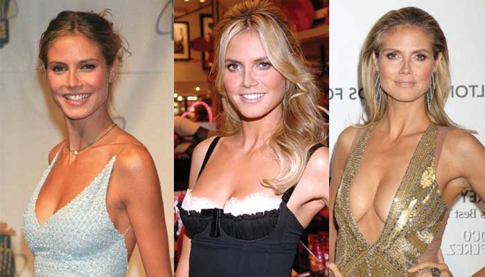 heidi klum plastic surgery before and after photos 2019