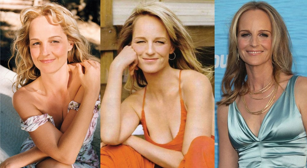helen hunt plastic surgery before and after photos 2020