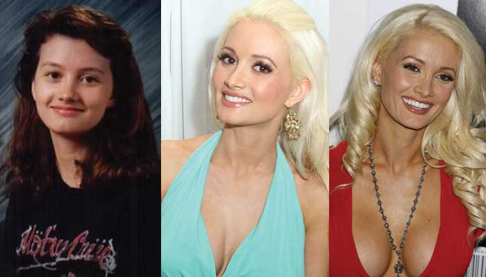 holly madison plastic surgery before and after photos 2020