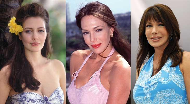hunter tylo plastic surgery before and after photos 2019