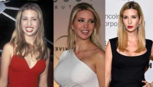 ivanka trump plastic surgery before and after photos