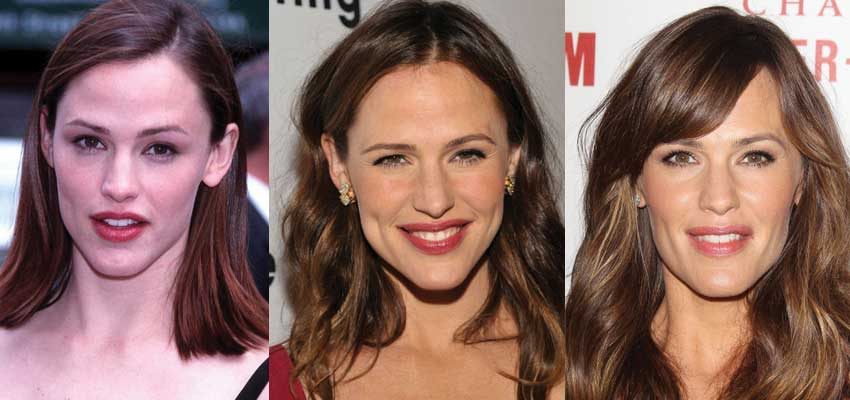 jennifer garner plastic surgery before and after photos 2018
