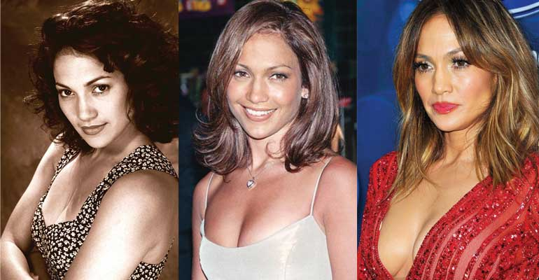 jennifer lopez plastic surgery before and after photos 2018