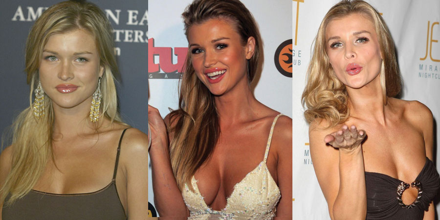 joanna krupa plastic surgery before and after 2018