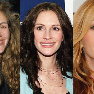Julia Roberts Plastic Surgery
