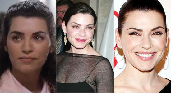 julianna margulies plastic surgery before and after photos 2019