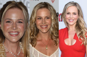 julie benz plastic surgery before and after photos
