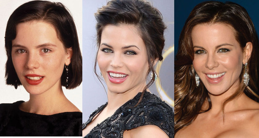 kate beckinsale before and after plastic surgery 2021