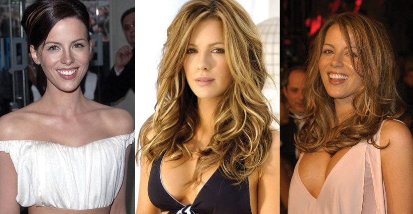 kate beckinsale plastic surgery before and after 2021