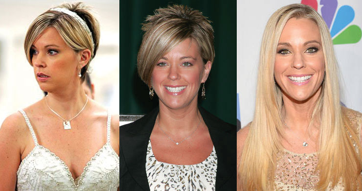 kate gosselin before and after plastic surgery 2018
