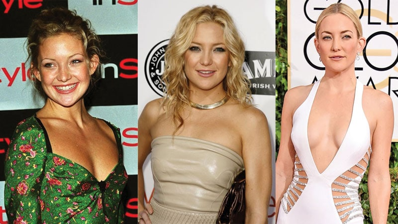 kate hudson before and after plastic surgery 2019