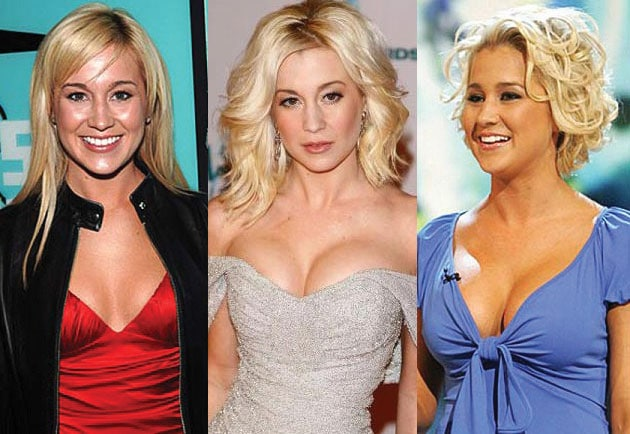 kellie pickler before and after plastic surgery 2021
