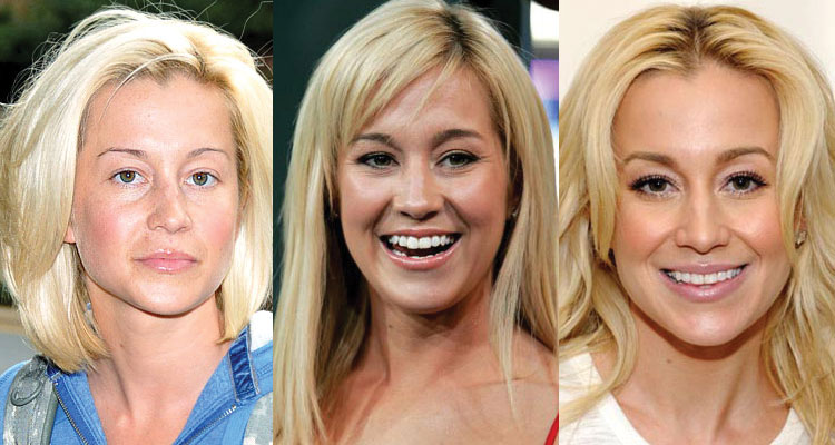 kellie pickler plastic surgery before and after 2018