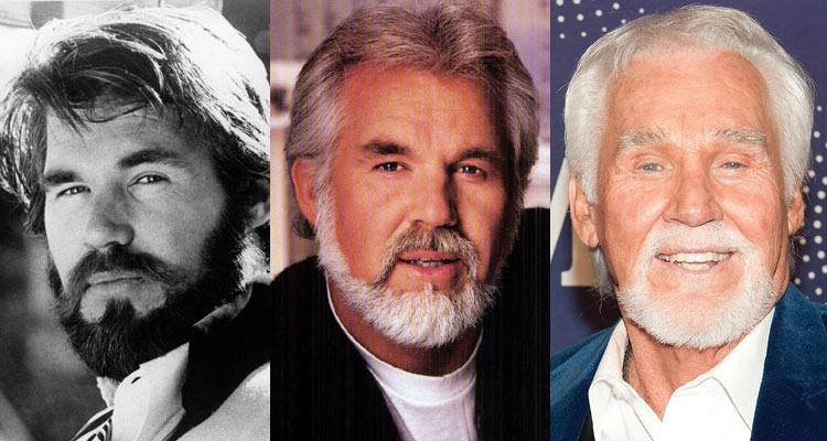 kenny rogers before and after plastic surgery 2020
