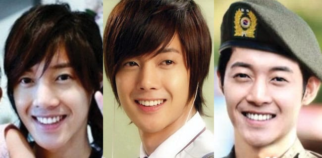 kim hyun joong plastic surgery before and after