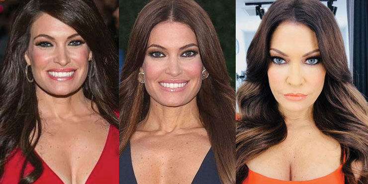 kimberly guilfoyle before and after plastic surgery 2020