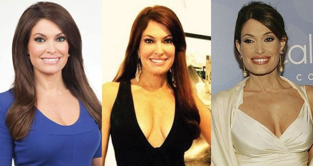 kimberly guilfoyle plastic surgery before and after photos 2020