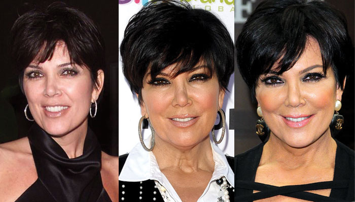 kris jenner plastic surgery before and after 2018